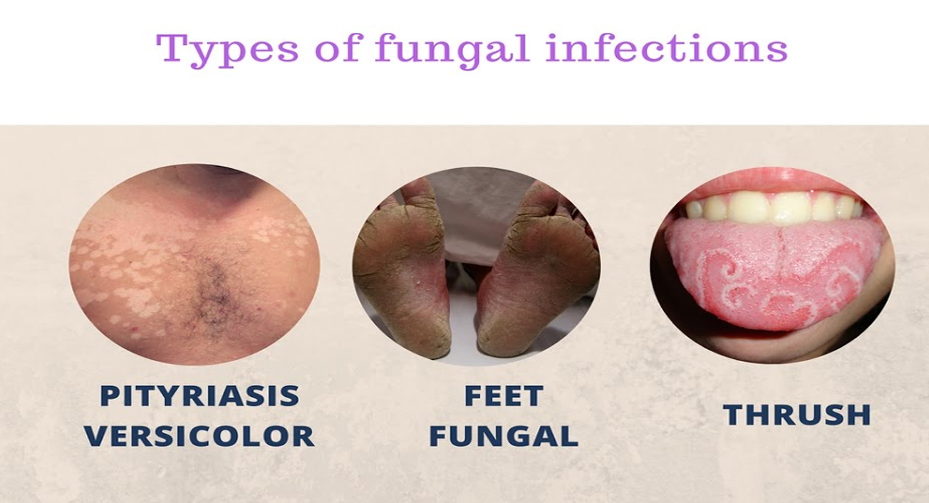 Fungal Infection Treatment in Gurgaon | Skin Care World