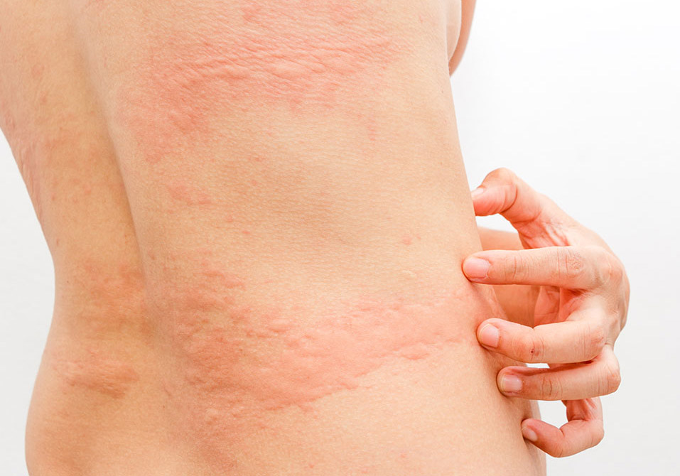 skin rashes treatment in gurgaon