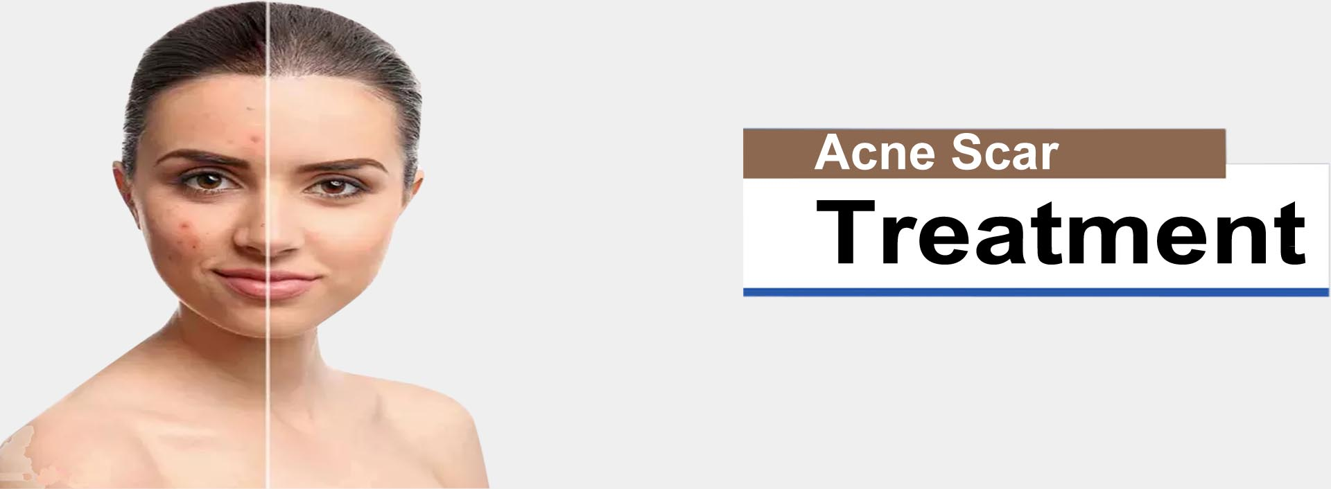 Acne Treatment in Gurgaon   Acne Scar Removal Treatment   Dr