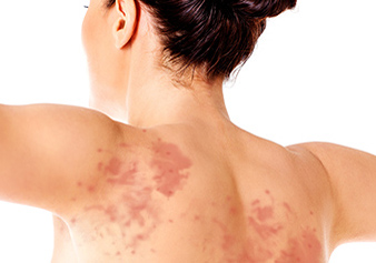 Skin rashes treatment Gurgaon