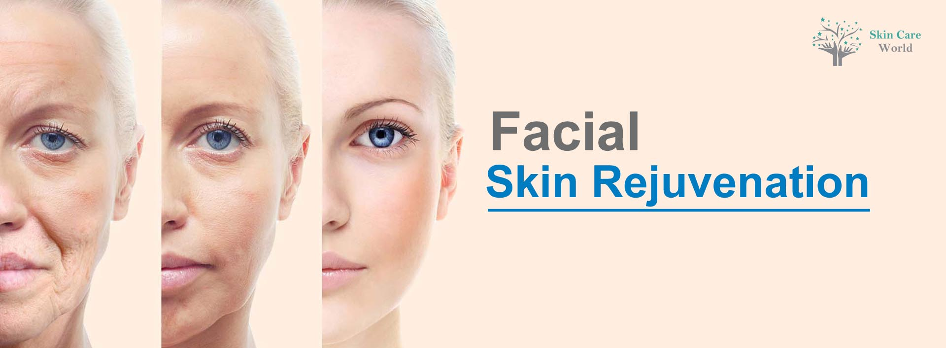 Facial Skin Rejuvenation in Gurgaon