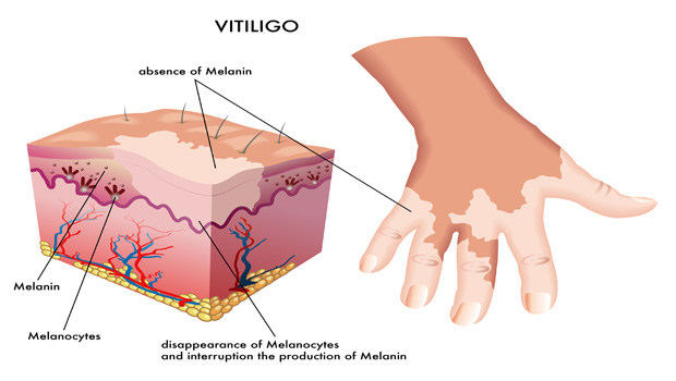 vitiligo causes and treatment