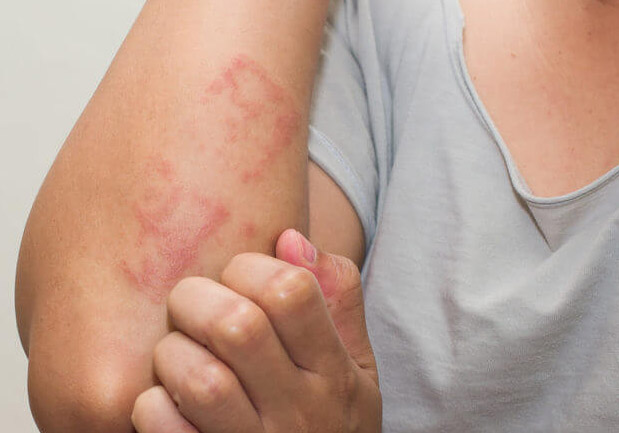 eczema treatment in gurgaon