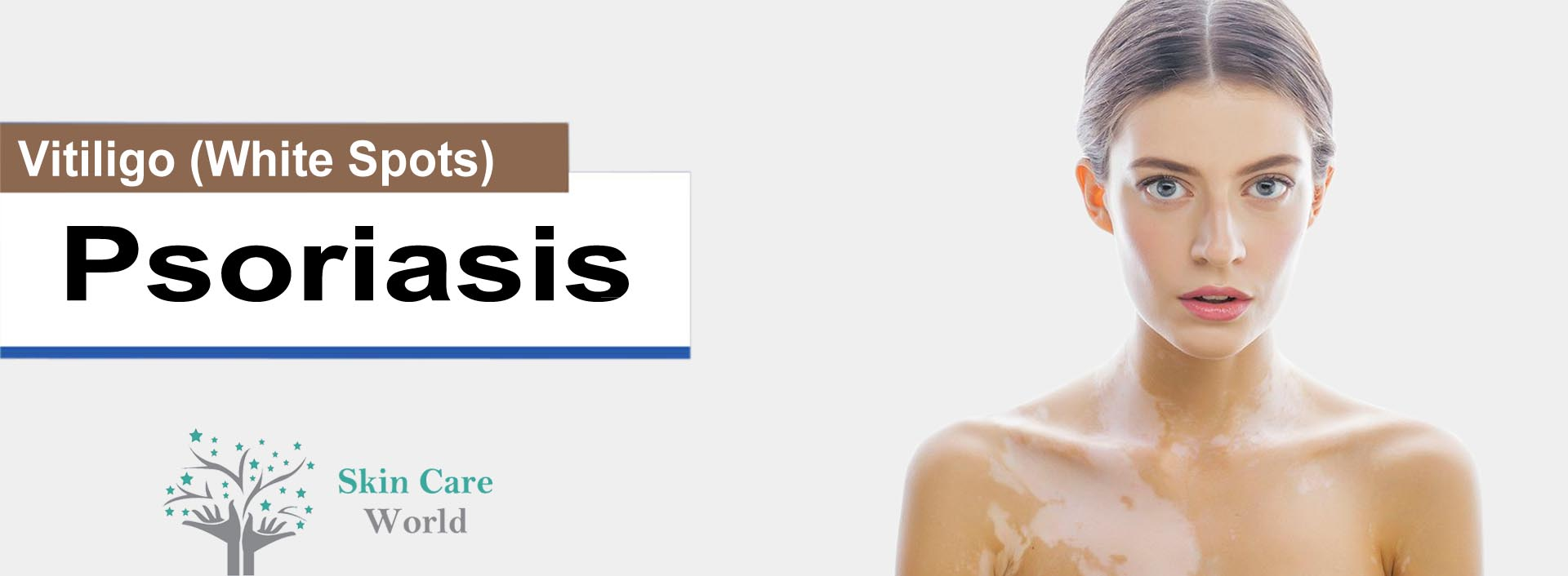 Psoriasis & Vitiligo Treatment