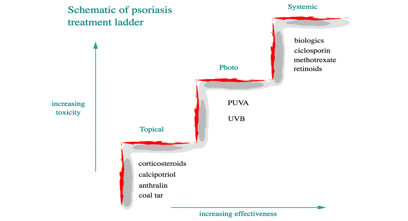 schematic of psoriasis treatment ladder